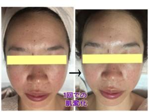 ニキビ跡 引かす 化粧品